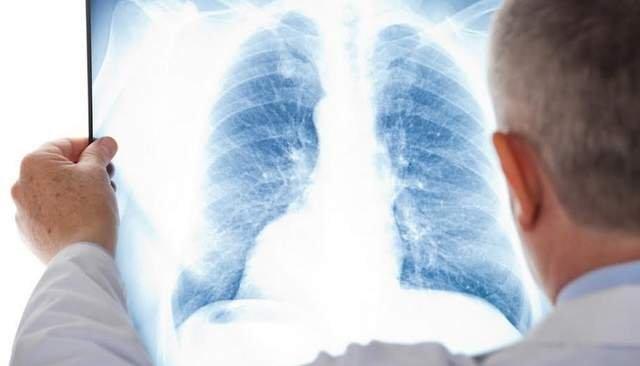 лікар перевіряє легені на наявність ознак туберкульозу